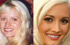 Holly Madison (Playboy): Antes & Después