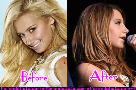 Ashley Tisdale habla de su cirugía plástica en la nariz