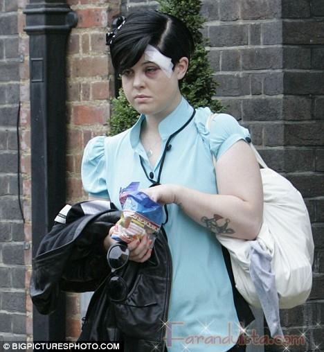 A Kelly Osbourne la ataca un armario y le cancelan el show
