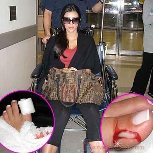 Kim Kardashian se corto un callo y fue al hospital