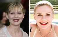 Editaron la sonrisa de Kirsten Dunst en Harpers Bazaar