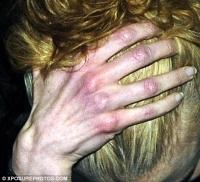 Lo que revelan las manos de Nicole Kidman