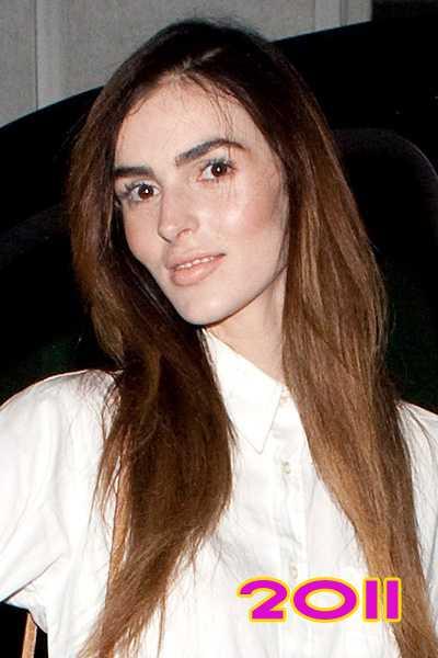 Ali Lohan tiene una nueva cara... LITERALMENTE! WTF?