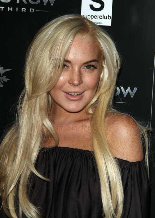 El rep de Lindsay Lohan habla de sus dientes asquerosos
