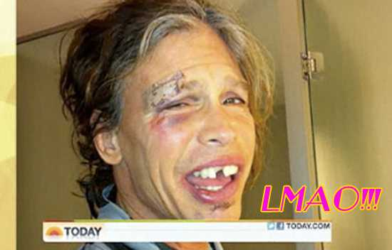 Foto de Steven Tyler luego del accidente en Paraguay - Ouch! LOL!