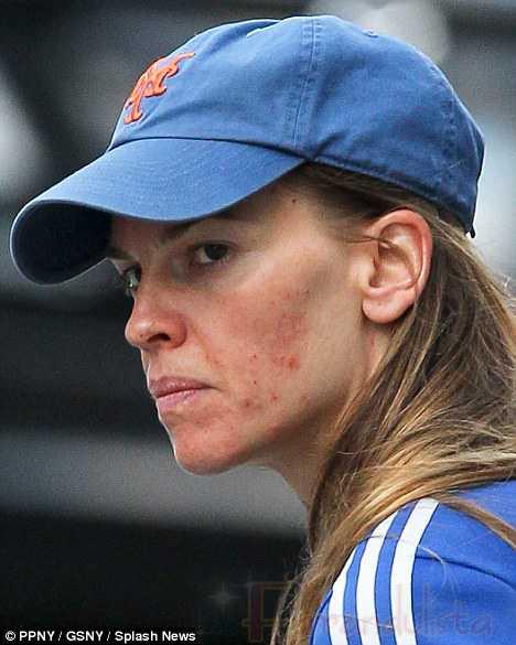 OOh! Hilary Swank tiene acné