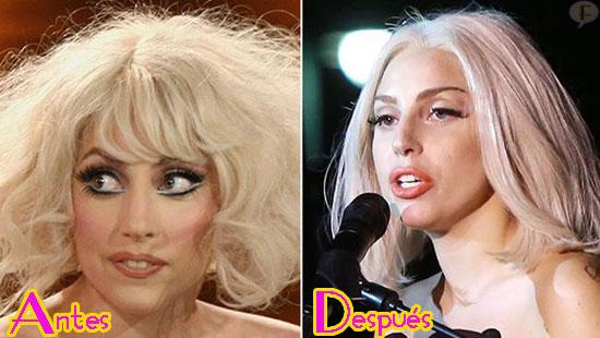 Lady Gaga Se Hizo Cirugía En La Nariz Nose Job Hollywood News