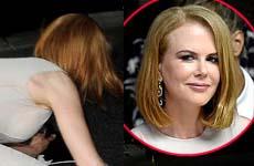 Nicole Kidman arrollada por un pap en bicicleta