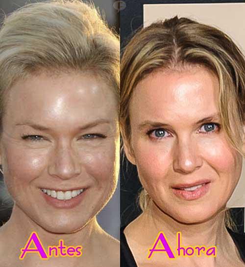 Renee Zellweger luce diferente... WTF? Abrió los ojos!!! LOL!