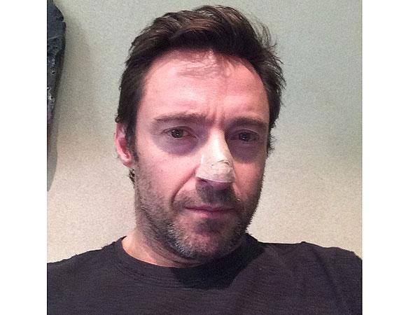 Hugh Jackman tratado por cáncer de piel