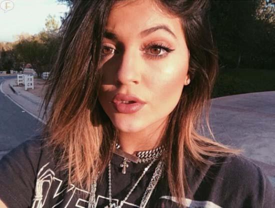 Kylie Jenner se inyectó los labios?