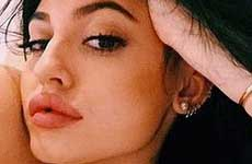 WTF? A que se parecen los labios de Kylie Jenner?