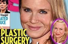Renee Zellweger y su cirugía plástica para obtener mas roles