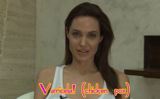 Angelina Jolie tiene varicela - OUCH!