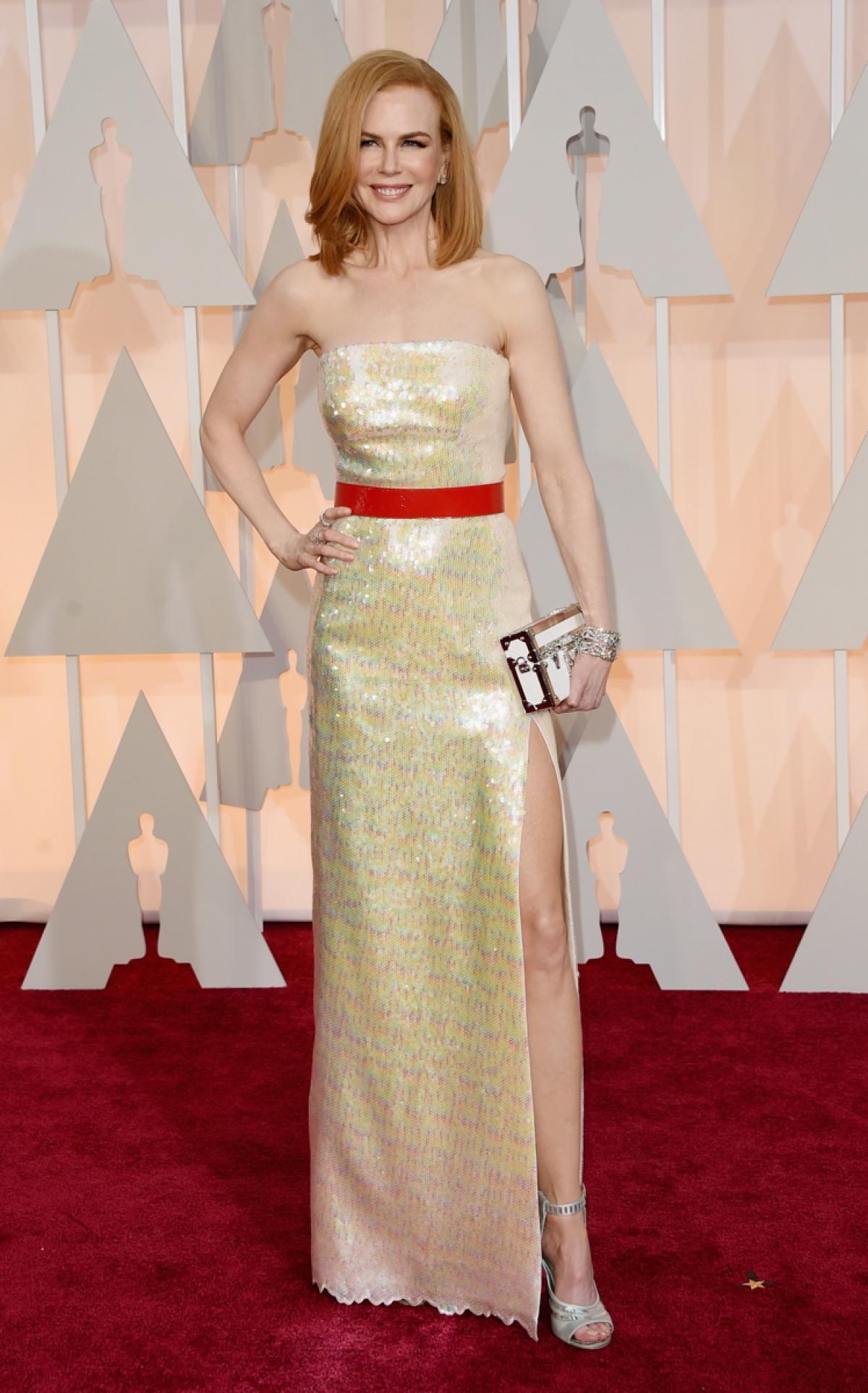 Las Peor Vestidas de los Oscars 2015 - Red Carpet
