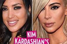 Kim Kardashian y sus cirugías plasticas! [Us]