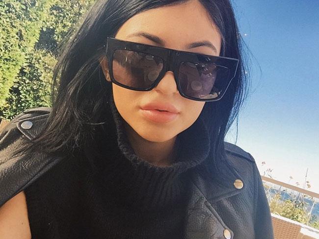 Kylie Jenner: 7 cirugías plásticas a los 17 [OK!]