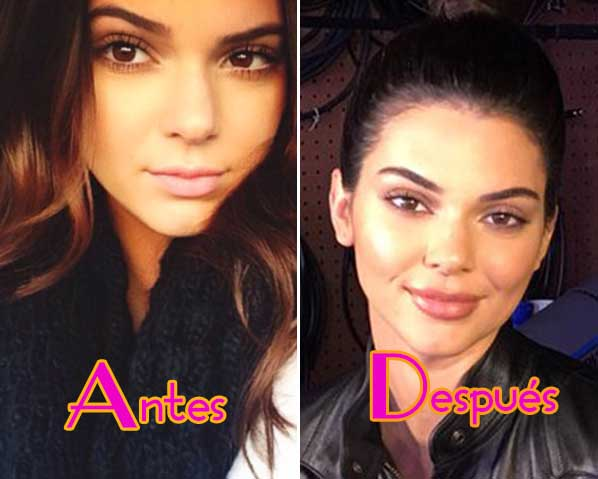 Kendall Jenner se inyectó los labios!! WHAT?