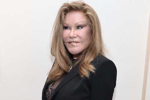 Jocelyn Wildenstein, La Catwoman arrestada por rasguñar al novio