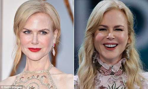 Qué se hizo Nicole Kidman en la cara?
