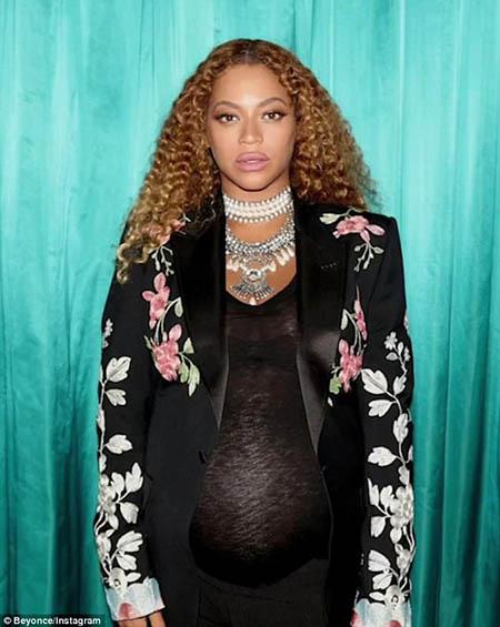 Beyoncé no se inyectó los labios! Está hinchada por el embarazo!!