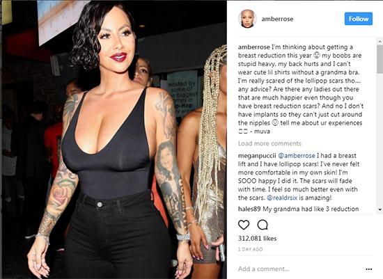 Amber Rose quiere reducir sus senos