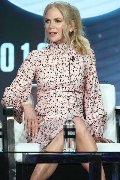 Nicole Kidman perdiendo su cabello, calva?