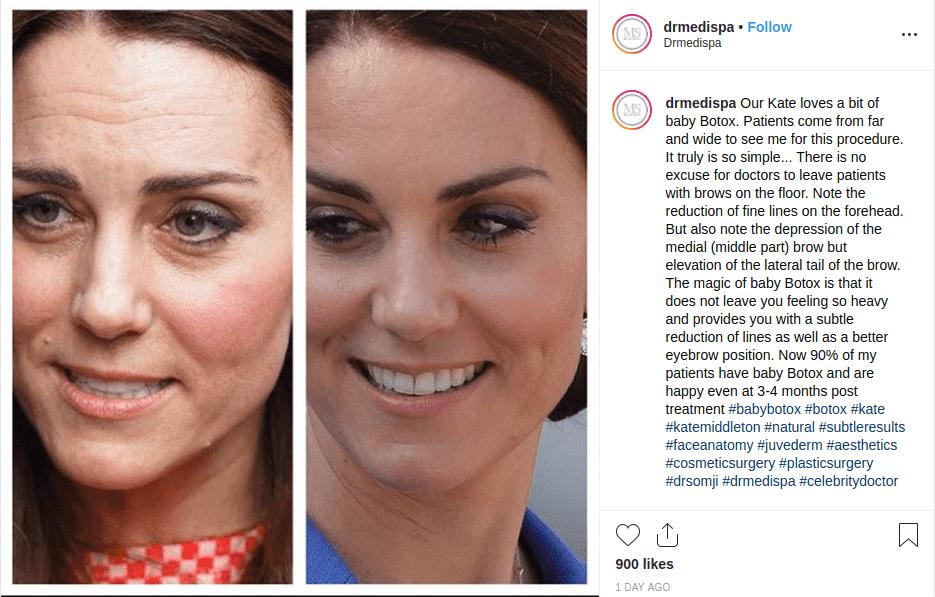 Kate Middleton se inyectó Botox?