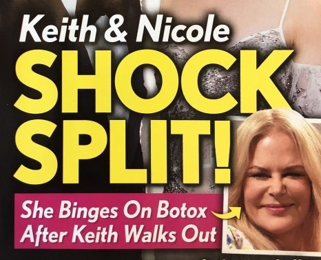 Nicole Kidman y Keith Urban: separados! Se llena de botox!