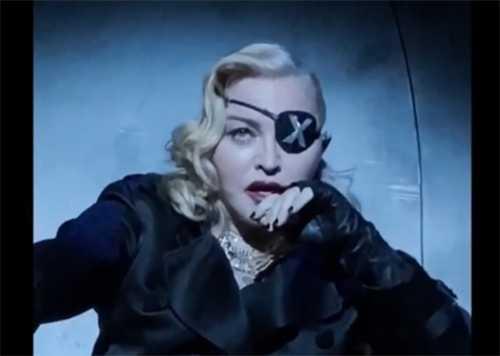 Madonna se cayó de una silla y suspende concierto en París