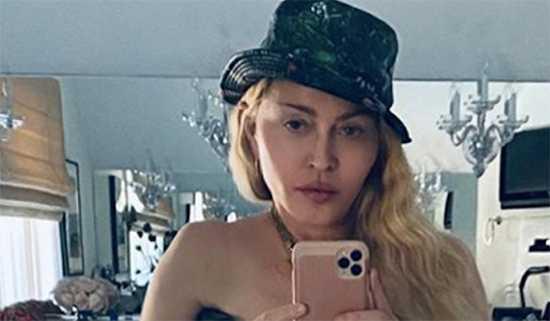 Madonna publicó selfie topless con muleta, WTF? Su cara!