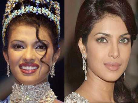 Priyanka Chopra habla de sus cirugías plásticas