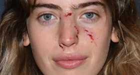A la hija de Ewan McGregor la mordió un perro en la cara