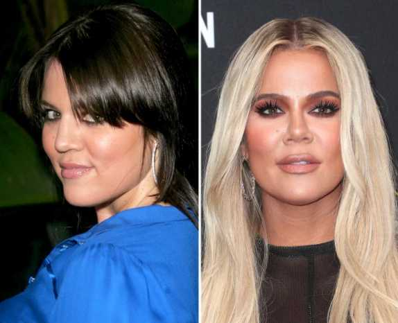 khloe before after